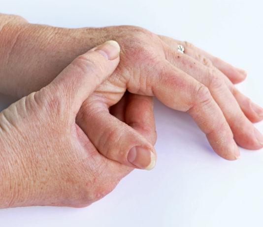 Artrosis Vitalisium
